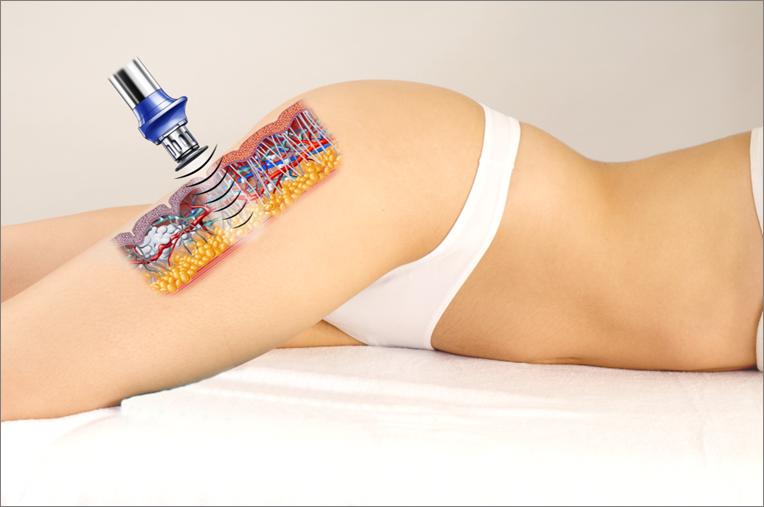 tratamiento-ultrasonidos-hifu-maribel-yebenes